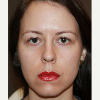 25-34 year old woman treated with Injectable Fillers