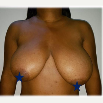 35-44 year old woman treated with Breast Reduction before 3288302