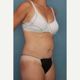 35-44 year old woman treated with Tummy Tuck before 2340780