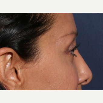 45-54 year old woman treated with Eyelid Surgery (view 2 of 2) after 3104773