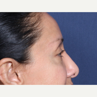 45-54 year old woman treated with Eyelid Surgery (view 2 of 2) before 3104773
