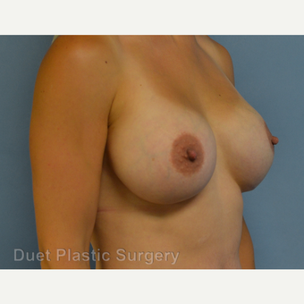 25-34 year old woman treated with Breast Augmentation after 3342168