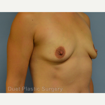 25-34 year old woman treated with Breast Augmentation before 3342168