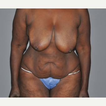 45-54 year old woman treated with Mommy Makeover before 2713065