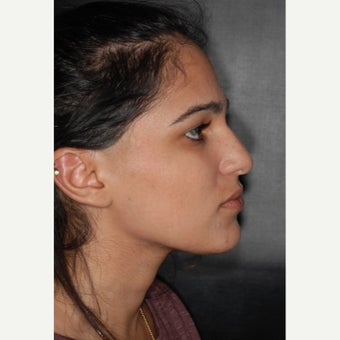 25-34 year old woman treated with Nose Surgery 1793767