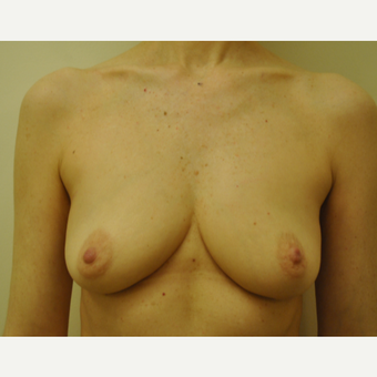 51 year-old woman Breast Reconstruction Results before 3691450