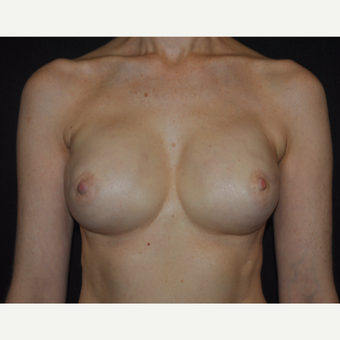 51 year-old woman Breast Reconstruction Results after 3691450