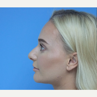 18-24 year old woman treated with Rhinoplasty before 3826198