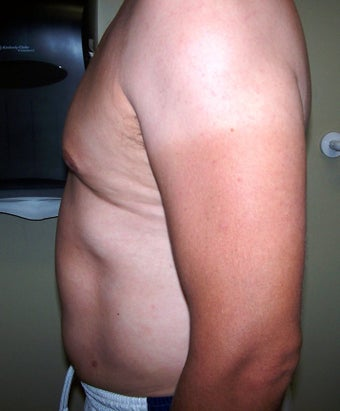 Vaser liposuction 313440