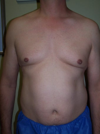 Vaser liposuction before 313440
