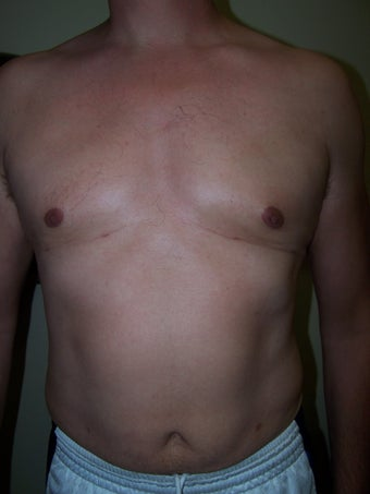Vaser liposuction after 313440