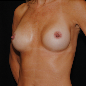 35-44 year old woman treated with Breast Implants after 3849529