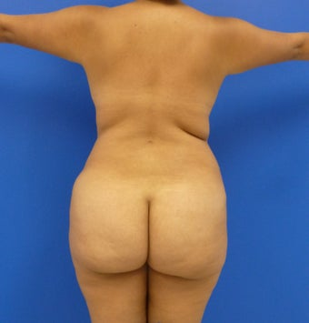 29 y.o. female – Liposuction of abdomen, flanks, and back with fat transfer to buttocks & hips – 1400 cc per side  before 1127838