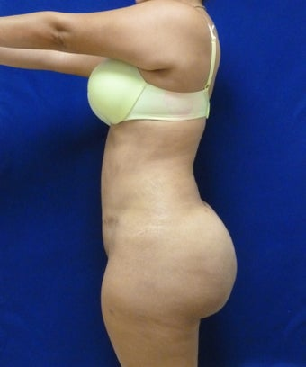 29 y.o. female – Liposuction of abdomen, flanks, and back with fat transfer to buttocks & hips – 1400 cc per side  1127838