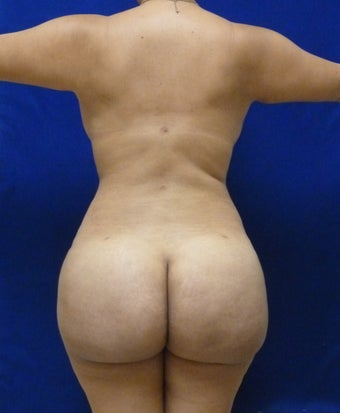29 y.o. female – Liposuction of abdomen, flanks, and back with fat transfer to buttocks & hips – 1400 cc per side  after 1127838