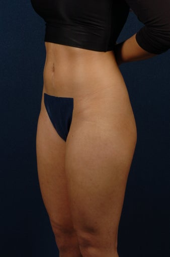 20 Year Old Female - Gluteal Augmentation 362445