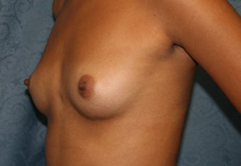 BrAug, with saline implants, under the muscle before 622104