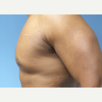 35-44 year old man treated with Male Breast Reduction after 3678083
