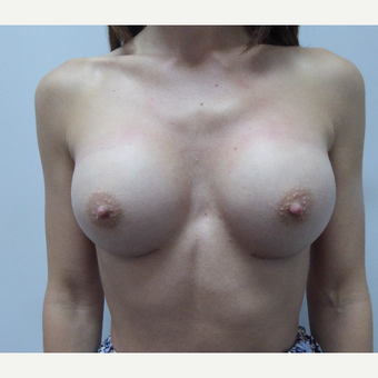 35-44 year old woman treated with Breast Augmentation after 3375693