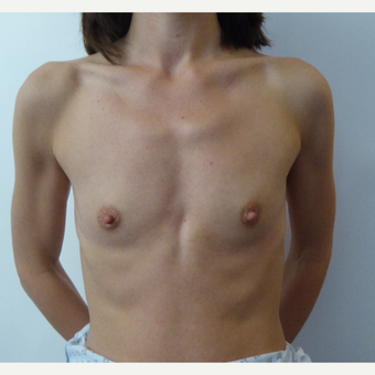 35-44 year old woman treated with Breast Augmentation before 3375693