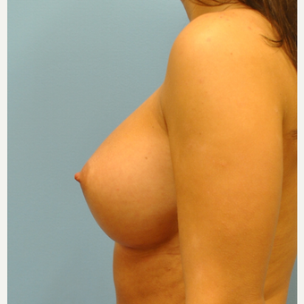 28 year old woman treated with Breast Augmentation, 300 cc ultra high profile after 3493912