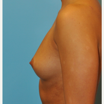 28 year old woman treated with Breast Augmentation, 300 cc ultra high profile before 3493912