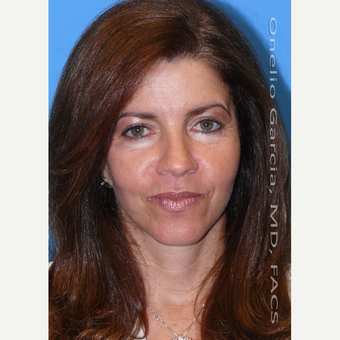 45-54 year old woman treated with Facelift after 3008499