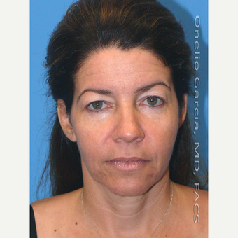 45-54 year old woman treated with Facelift before 3008499