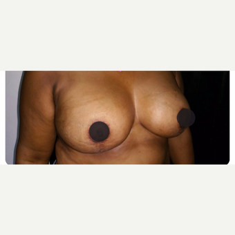 35-44 year old woman treated with Breast Lift after 3706738