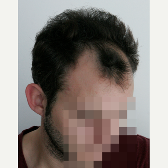 25-34 year old man treated with FUE Hair Transplant before 3069707