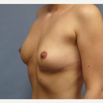 25-34 year old woman treated with Breast Implant Removal after 3300910