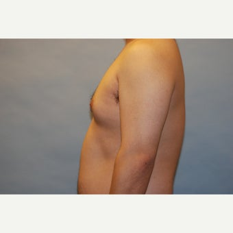 27 year old man treated with male breast reduction  1548015