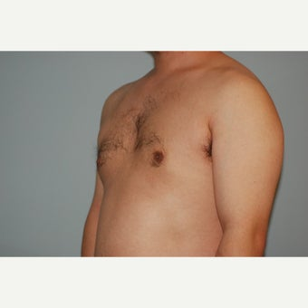 27 year old man treated with male breast reduction  after 1548015