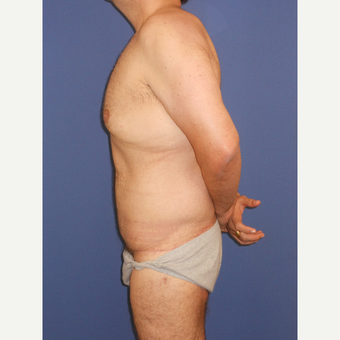 35-44 year old man treated with Tummy Tuck after 3670446
