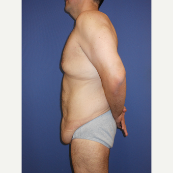 35-44 year old man treated with Tummy Tuck before 3670446