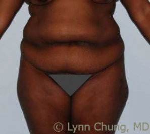 Female in her late 30's- Tummy Tuck before 1506362