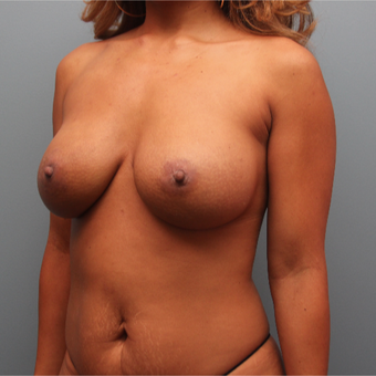 Breast Augmentation Revision after 3389270
