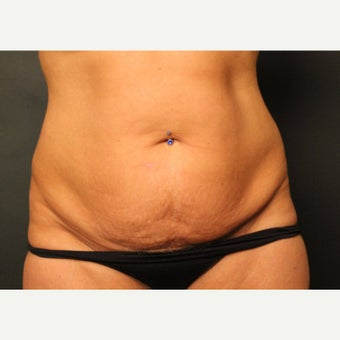 45-54 year old woman treated with Smart Lipo