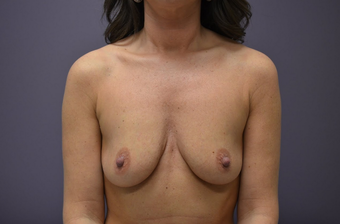 Breast Augmentation before 1401751