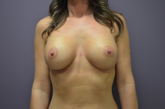 Breast Augmentation after 1401751