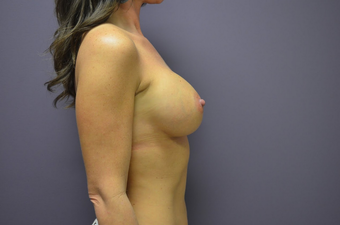 Breast Augmentation 1401751