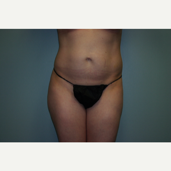 25-34 year old woman treated with Tummy Tuck before 3032542