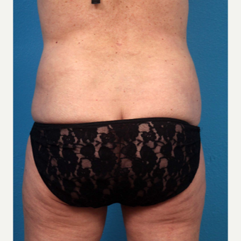 45-54 year old woman treated with Tummy Tuck after 3227379