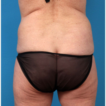 45-54 year old woman treated with Tummy Tuck before 3227379
