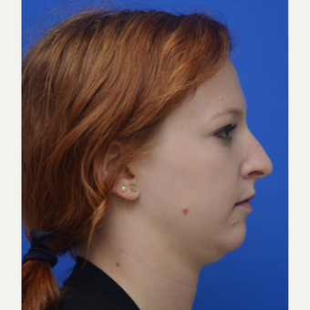 18-24 year old woman treated with Rhinoplasty before 3253536