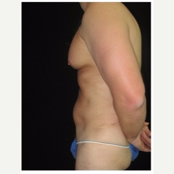 45-54 year old man treated with Liposuction after 3046635