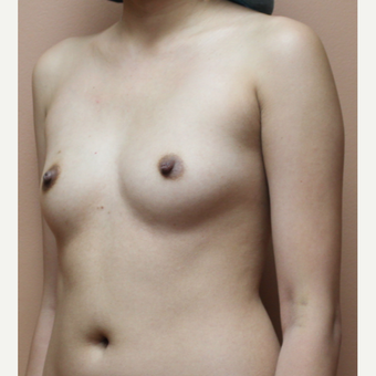 25-34 year old woman treated with Breast Fat Transfer before 3452662
