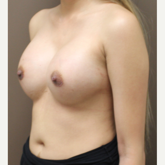 25-34 year old woman treated with Breast Fat Transfer after 3452662