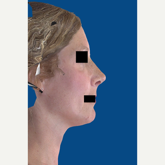 45-54 year old woman treated with Rhinoplasty after 3037544