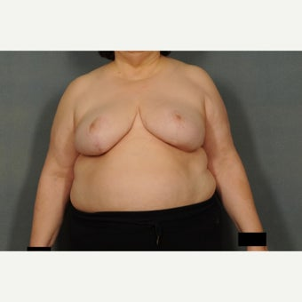 55-64 year old woman treated with Breast Reduction after 1576385
